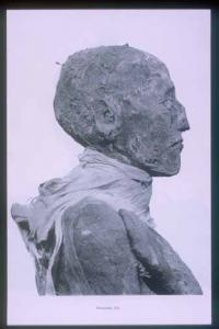 Mummy of Rameses III: head (side view).